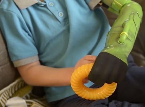 Un joven inglés tiene el mismo brazo robótico que Hulk